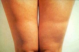 Lipoatrofia Semicircular. El origen del trastorno